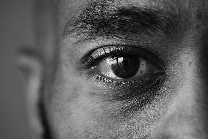 Tout savoir sur le glaucome